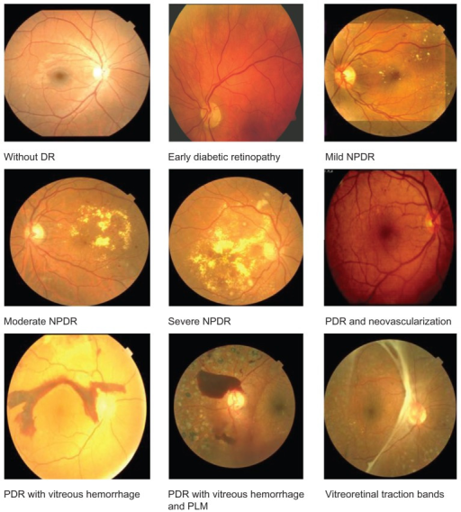 Some (sub)types of diabetic retinopathy. The competition grouped some together to get 5 ordered classes. (Click on image for source.)