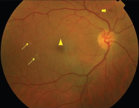 Example of non-proliferative diabetic retinopathy (NPDR): Thin arrows: hard exudates; Thick arrow: blot intra-retinal hemorrhage; triangle: microaneurysm.