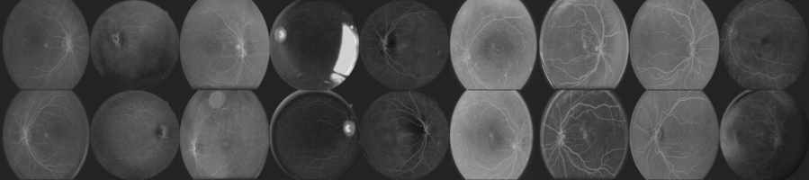 Pairs of fundus images of the eye after the first layer in the convolutional neural network.