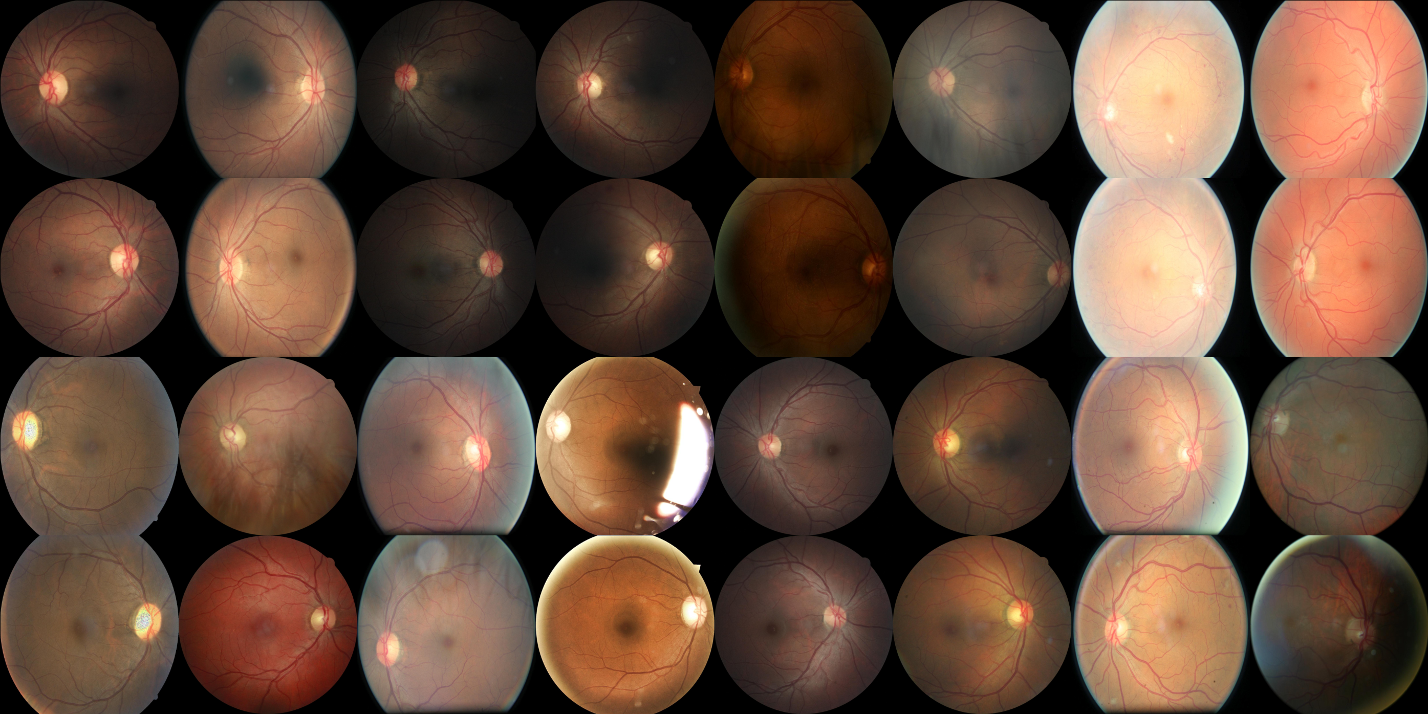 Detecting diabetic retinopathy in eye images - 菜鸡一枚 - 博客园
